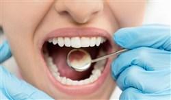تسوّس الأسنان