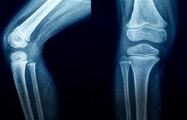 تقوية العظام