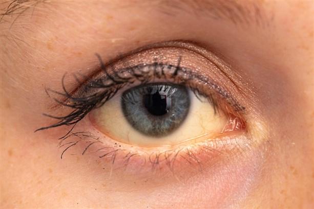 Sohati أمراض تكشف عنها العين