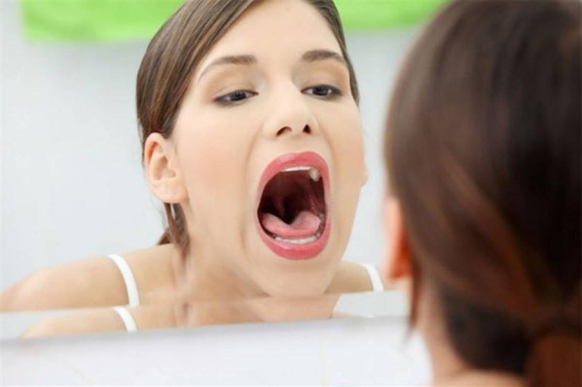 علاجات منزلية لالتهاب الحلق