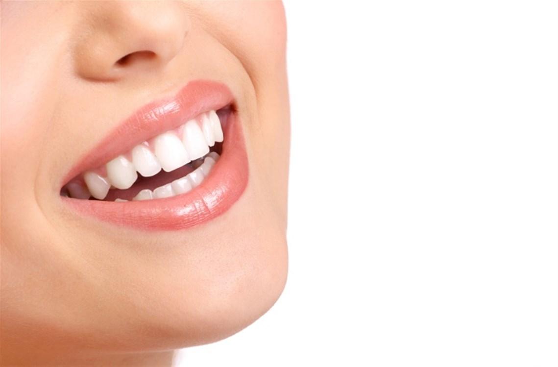 Sohati - 7 وصفات طبيعية لإبتسامة هوليوودية!